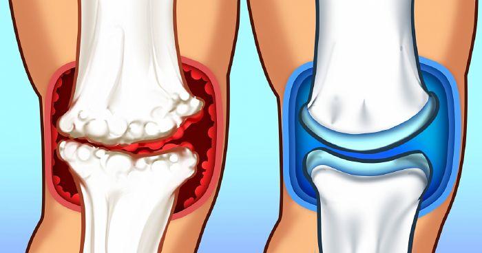 bélfertőzés ízületi fájdalom