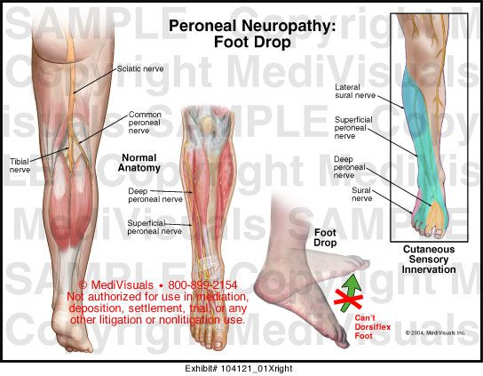 térdízületi fájdalmat okozó fertőzések ízületi fájdalom betegség
