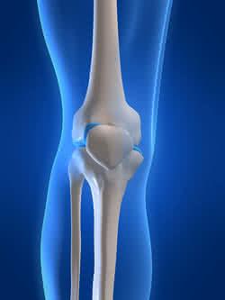 gyógyszer elbon ízületekre a térdízület artrózisa 1 fok