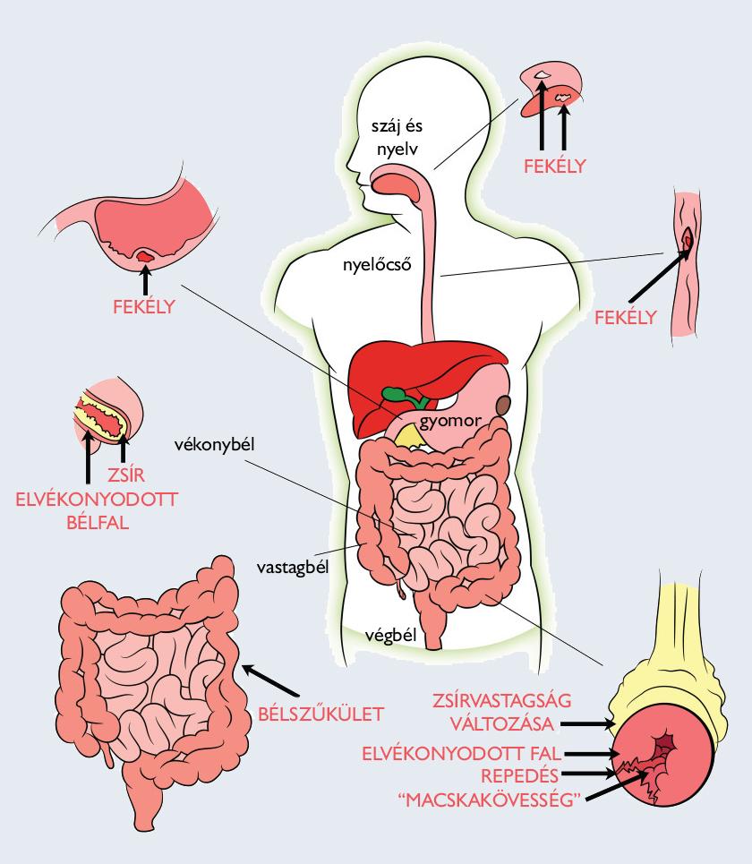 crohn-kór és ízületek a vénák és ízületek fájdalma okoz