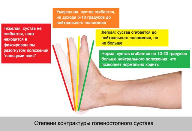 Mi a veszélye annak, bursitis, a térdízület, hogyan kell ezt kezelni?