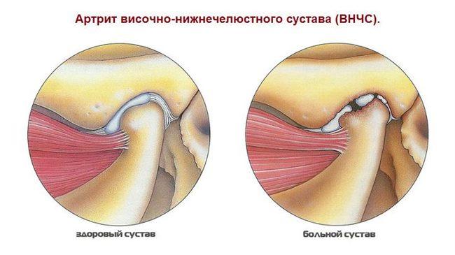 amikor kinyitja a száját, az ízület fáj brachialis arthritisz