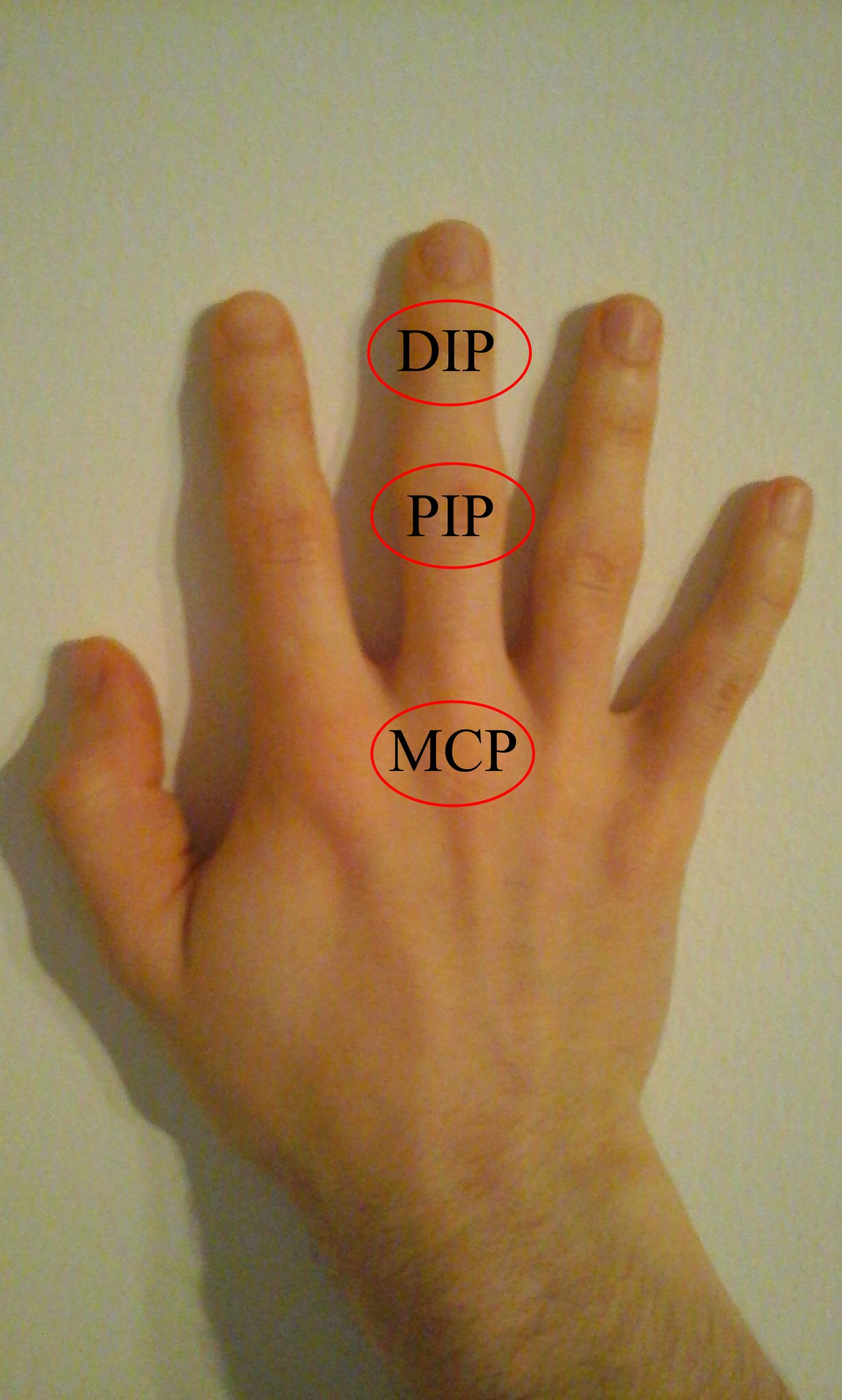hogyan lehet kezelni az ujjak ízületeinek gyulladását chondroitin készítmények artrózishoz
