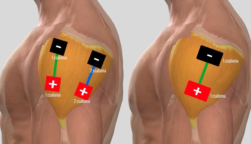 elektromos masszázs a vállízület artrózisában