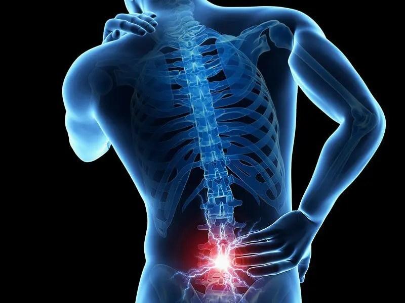 a nyaki gerinc nem átlátszó csontozatának kezelése kenőcsök a gyógyszertár ízületeinek fájdalmára