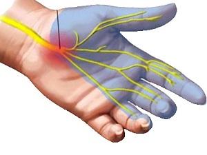 ízületi fájdalom és a bal kéz zsibbadása csípő jam kezelés