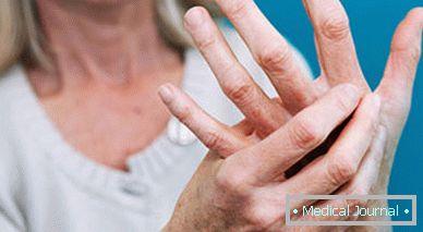 Bakteriális arthritis & Ízületi gyulladás & Megemelkedett monocita szám: okok – Symptoma