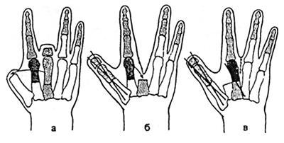 Kúpok és növekedések az ujjakon - okok és kezelés (fotóval) - Bőrgyulladás July