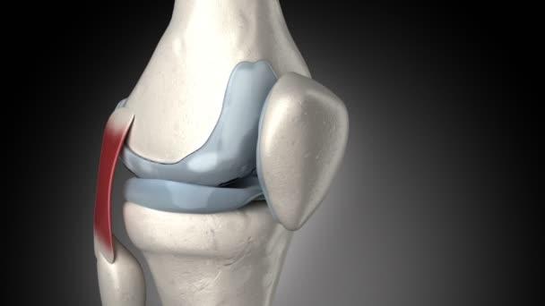 betétek a térd artrózisához az ízület betegségei