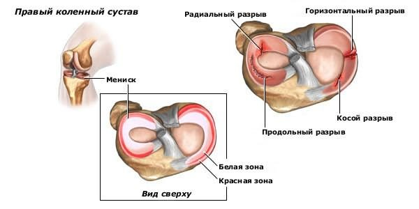 szüksége van fizioterápiára ízületi fájdalmak esetén csípőízületi fájdalmak és összeroppantások