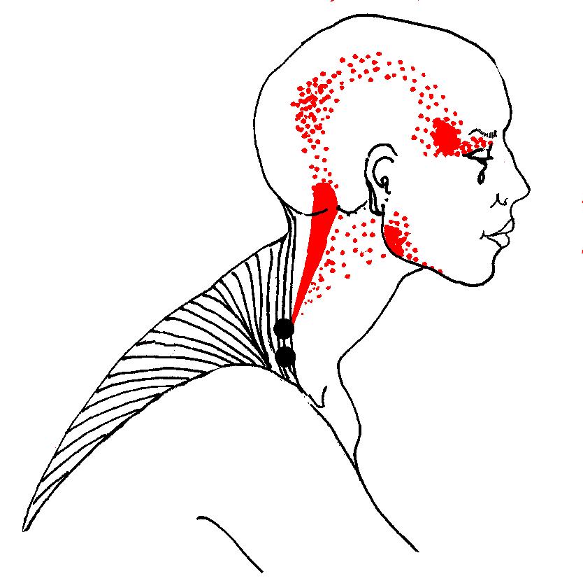 fájdalom a fejben és a nyakon a közös kezelés elve