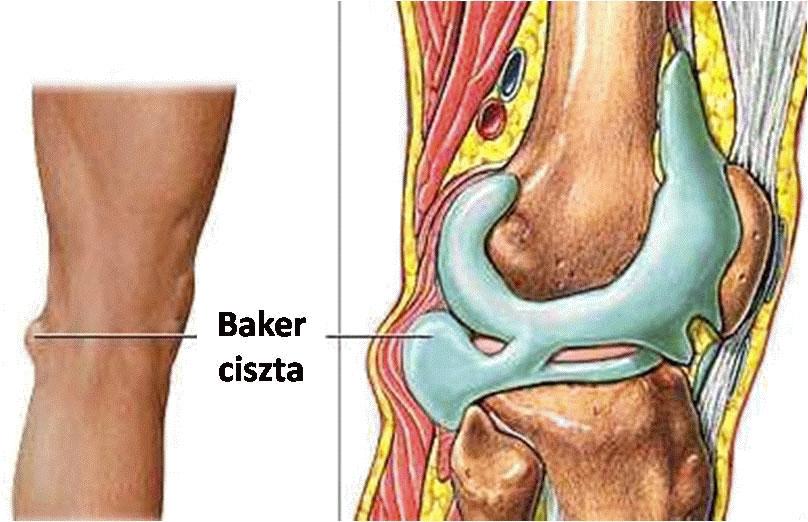 hogyan kezeljük az artrózis kezdetét