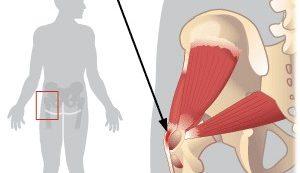 kenőcsök terápiás osteochondrosis a könyökízületek deformáló artrózisa 1 fok