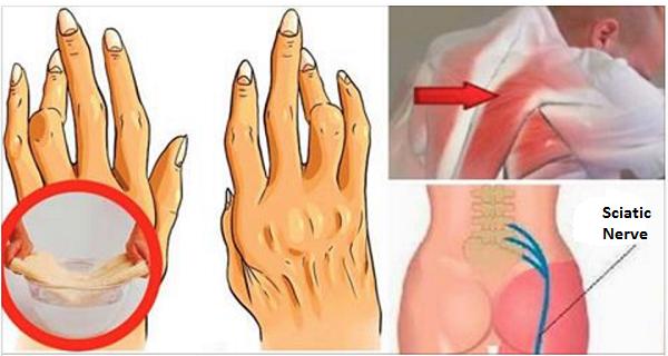 ricinusolaj ízületi kezeléshez ízületi gyulladás térdkezeléssel enyhíti a gyulladást