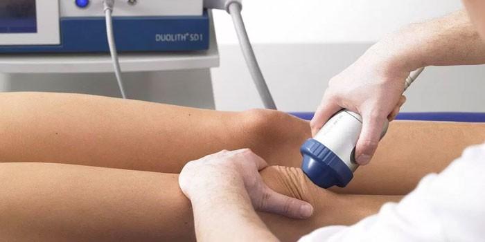 Étrend osteoarthritis térdízület synovitis