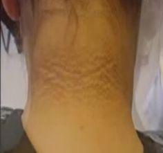 fáj a sarok ízülete berdyansk ízületi kezelés