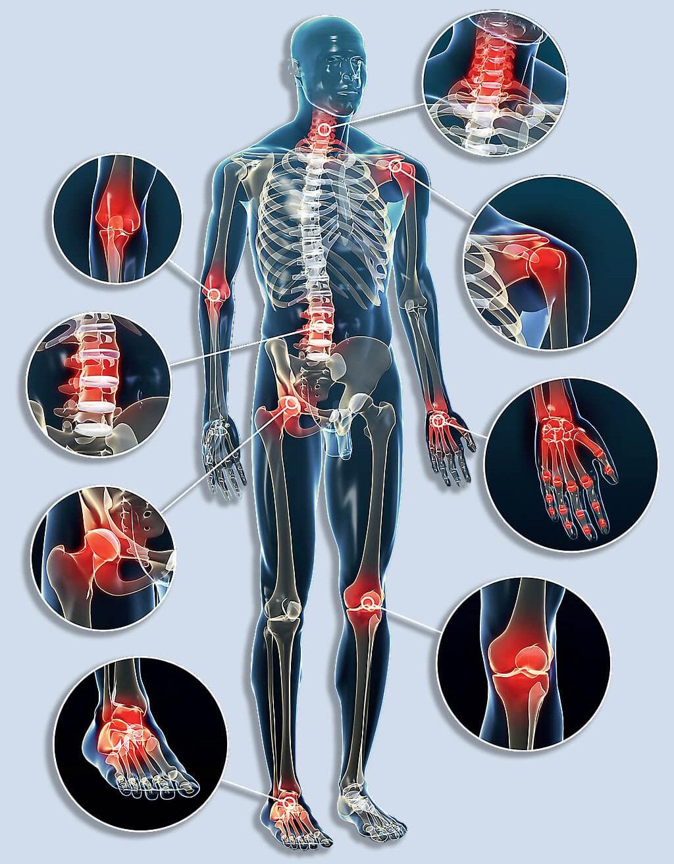 arthrosis kezelés taganskaya