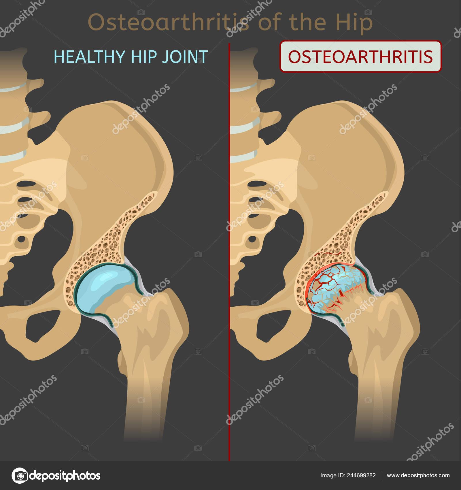 ízületek osteoarthrosis kórtörténetét a lábak ízületei időnként fájnak