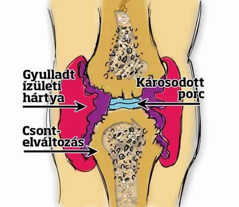 ízületek és csontok károsodása