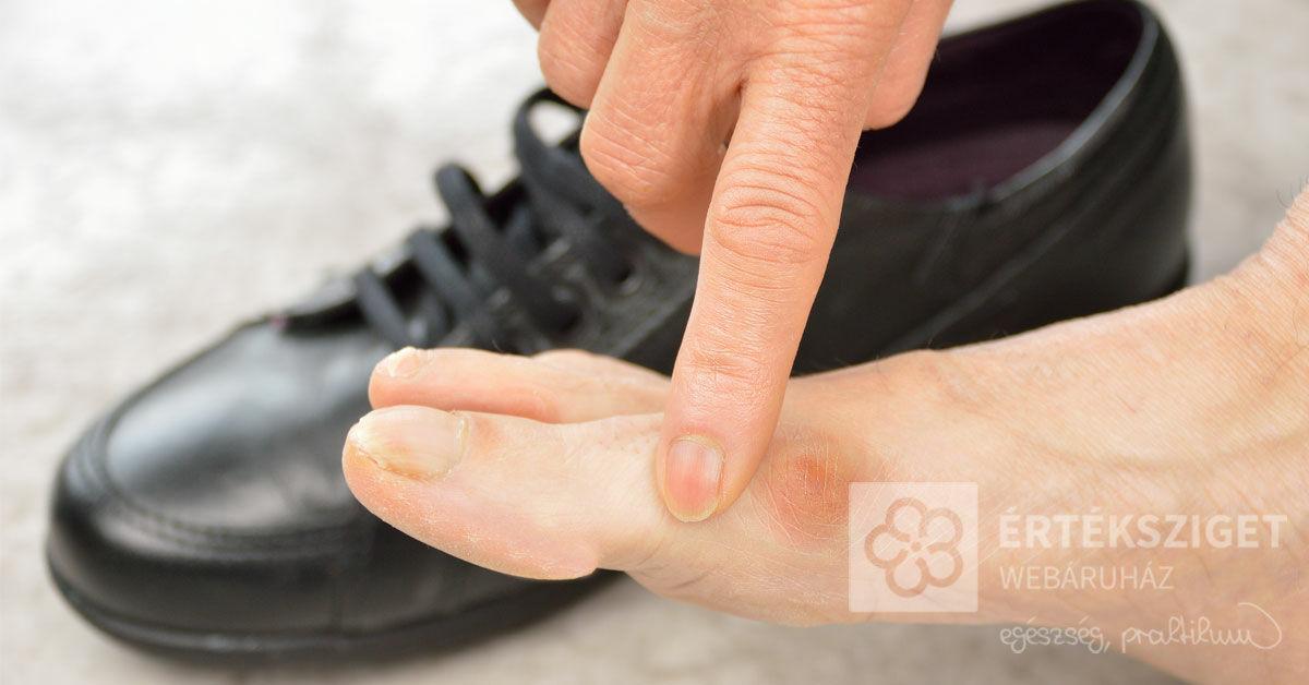 nagylábujj izületi fájdalom cédrusolaj ízületi kezelésre