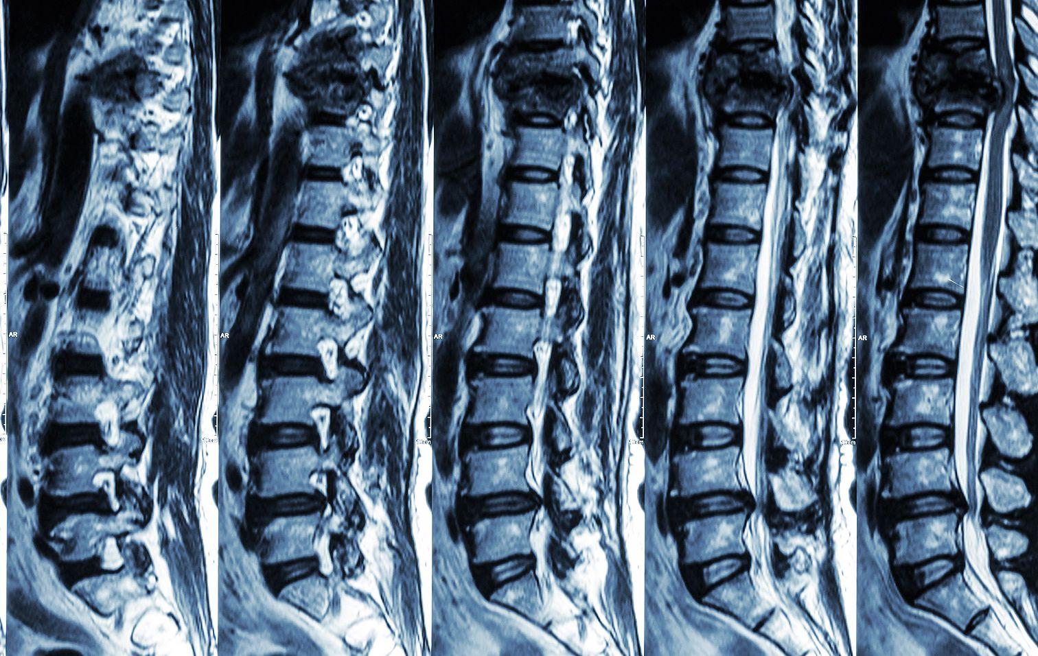 milyen gyógyszert inni a csípőízület fájdalma érdekében