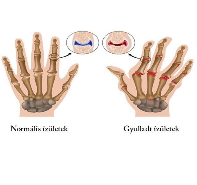 hogyan lehet enyhíteni a lábujj ízületének gyulladását az összes ízület tüneteinek artrózisa