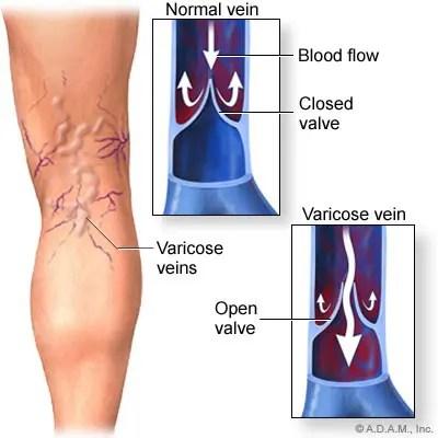 a vállízület artrózisa 2 fokos kezelés