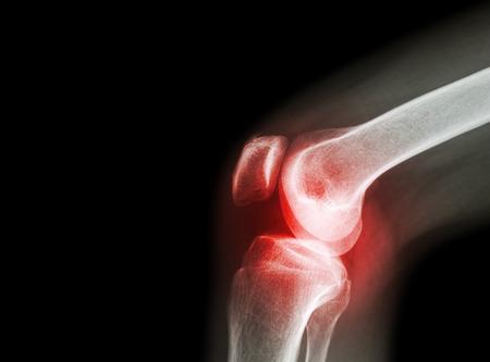 artrózis térdkezelési módszerek