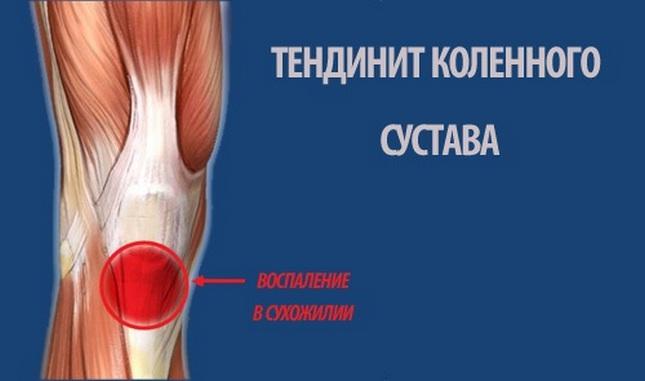 hirtelen éles fájdalom a térdben hogyan kezeljük a könyök ízületei ragasztásainak gyulladását