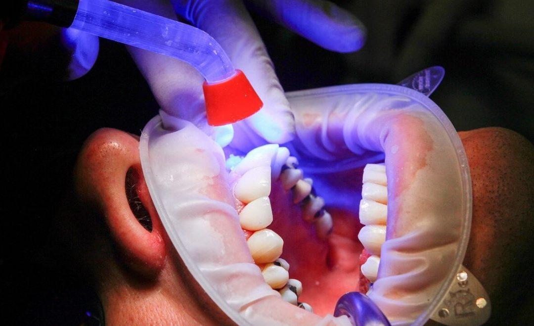 ízületi fájdalom a fogkezelés után ízületek disztrofikus betegségei