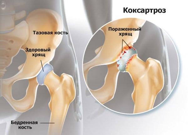 fáj a csípő belső része kenőcs az ízületek és ín fájdalmainak kezelésére