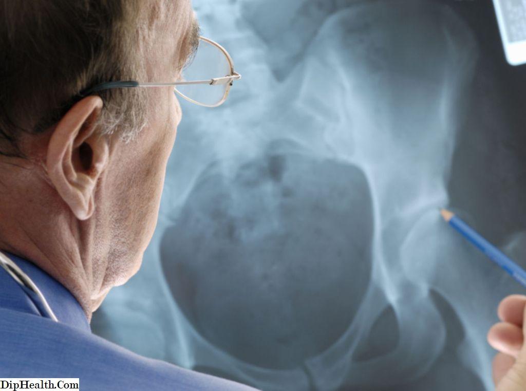 korai stádiumú artrózis kezelés