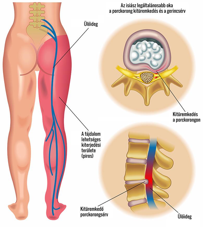 a gerinc ízületeinek krónikus gyulladása)