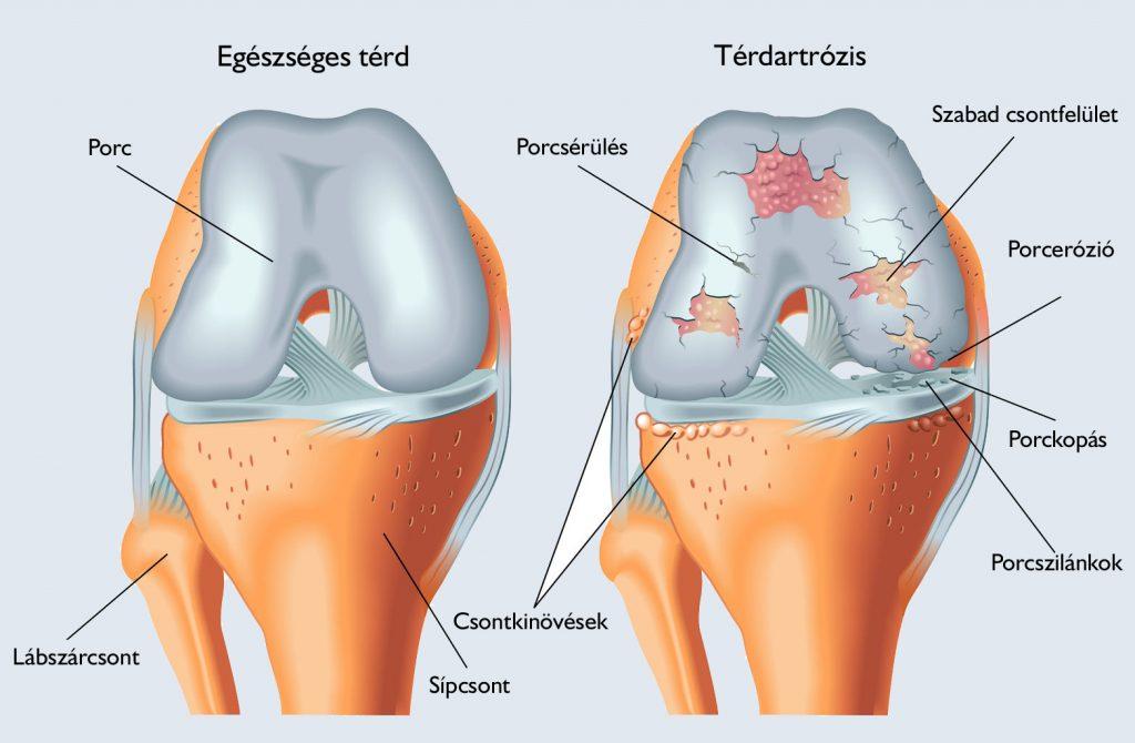 a térd meniszkuszának megrepedésének konzervatív kezelése ízületi fertőzés kezelése