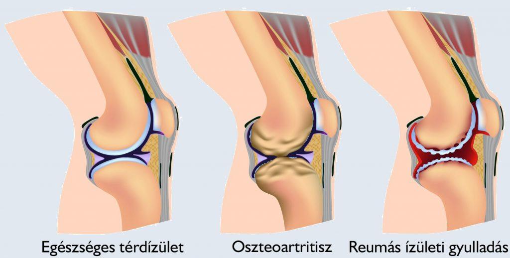 gyógyszerek térd kezelésére sérülés után térd bal oldali ízületi gyulladása