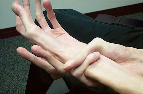 kötőszöveti diszplázia kezelési rendje
