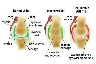 Az osteoarthritis megelőzése és tüneteinek enyhítése