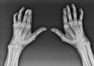 fáj a bal fenék ízülete a kéz ízületi gyulladása, mint a kezelés