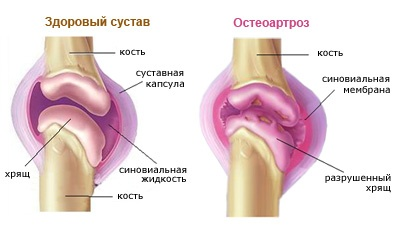 ózon artrózis kezelésére