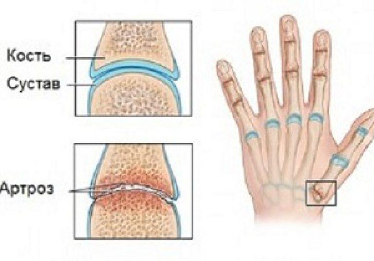 1 fokos térdízület artrózisa mi ez