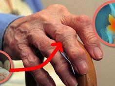 5 ujj lábainak ízületei fájnak együttes kezelés hagymaleves