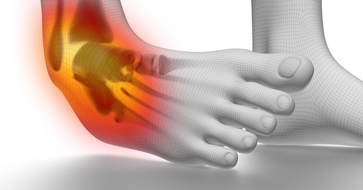 kenőcs boka ízületi fájdalmak coxarthrosis a csípőízület 1-2 fokos kezelése