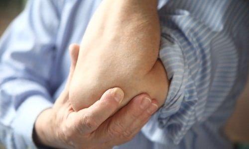 milyen kenőcsök a könyökízület fájdalmára