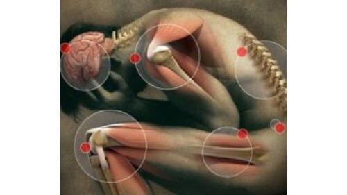körömvirág ízületi fájdalmak esetén