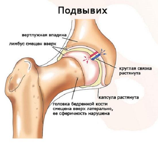gumiabroncsok a csípő dysplasia kezelésére