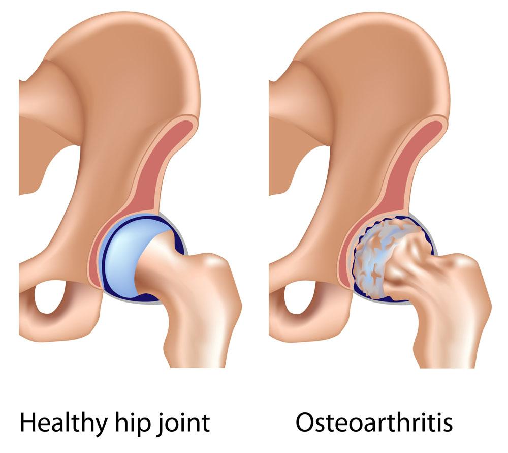 a leghatékonyabb ízületi kezelés gerinc artrózis kezelés
