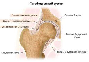 a csípőízület ízületi gyulladásának oka hogyan gyógyítottam meg az ujjak ízületi gyulladását
