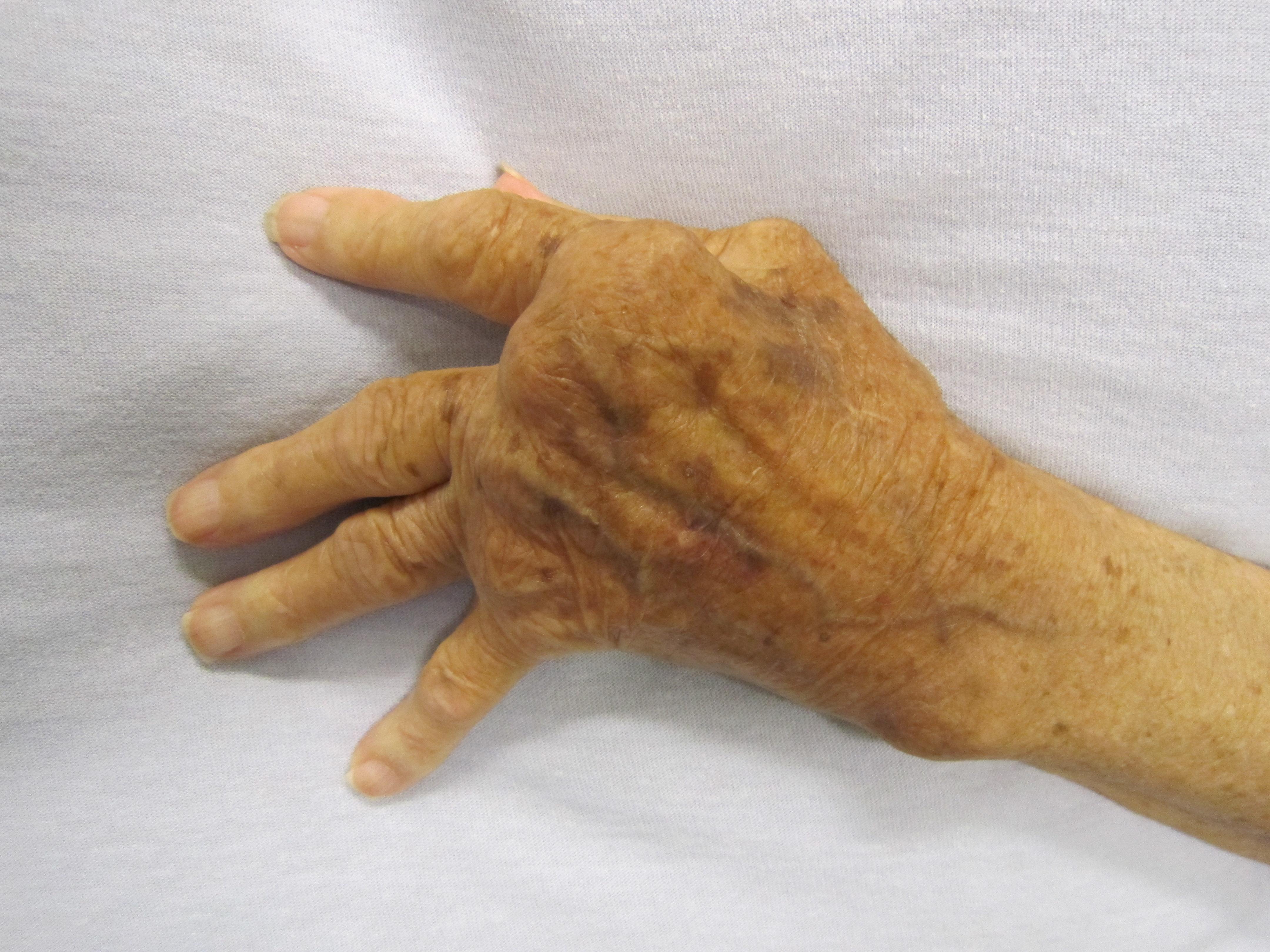 mutatóujj artritisz kezelése