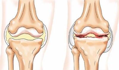 a bal térdízület deformáló artrózisa