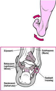 boka sérülések